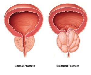 VitaFlow Prostate Supplement